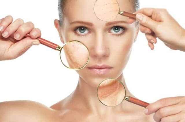 Macchie della pelle, come eliminarle?