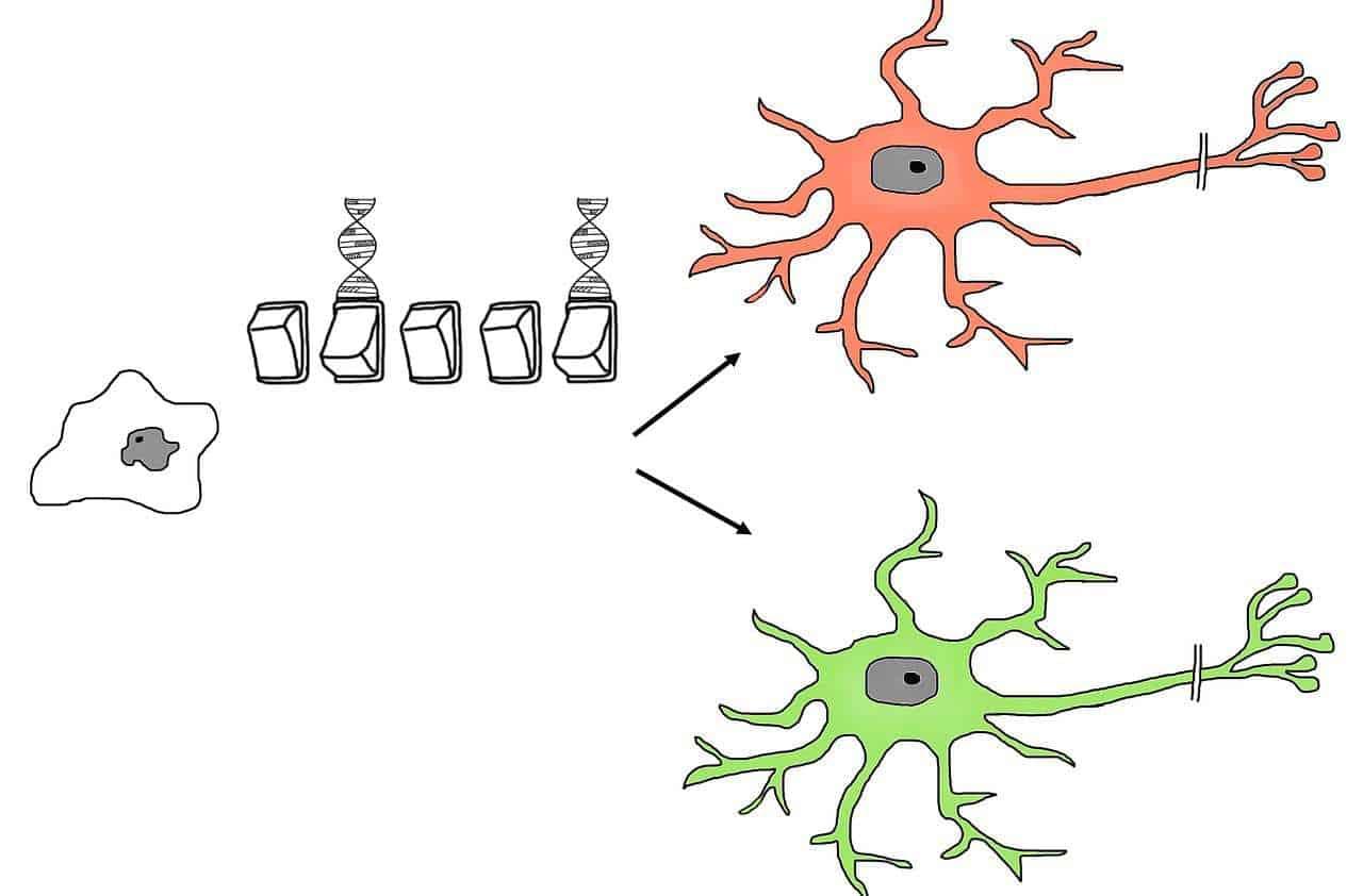 Parkinson: prima cura sperimentale al mondo con staminali