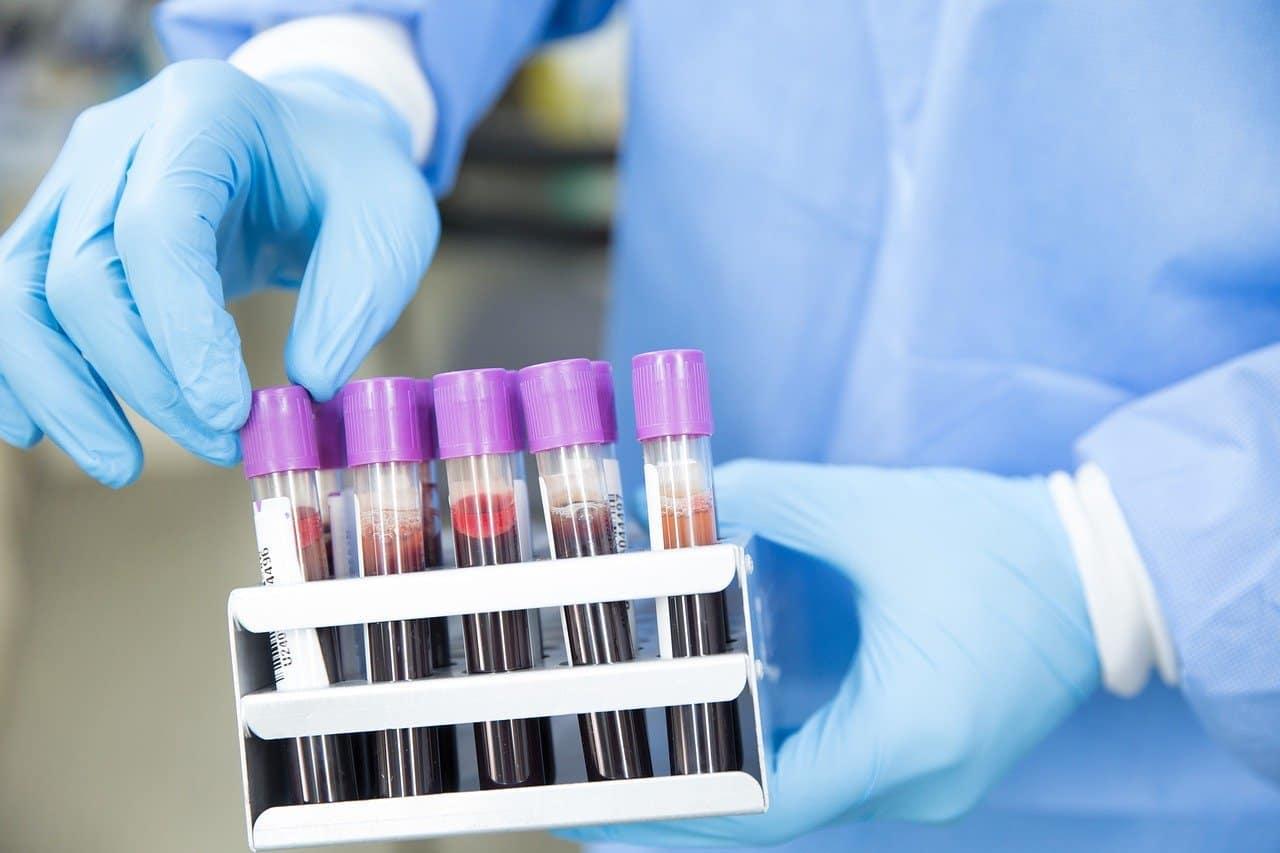 Milano-Bicocca, test sierologici per i dipendenti dell'ateneo
