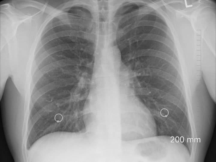 Ecografia polmonare può diagnosticare il COVID: lo studio