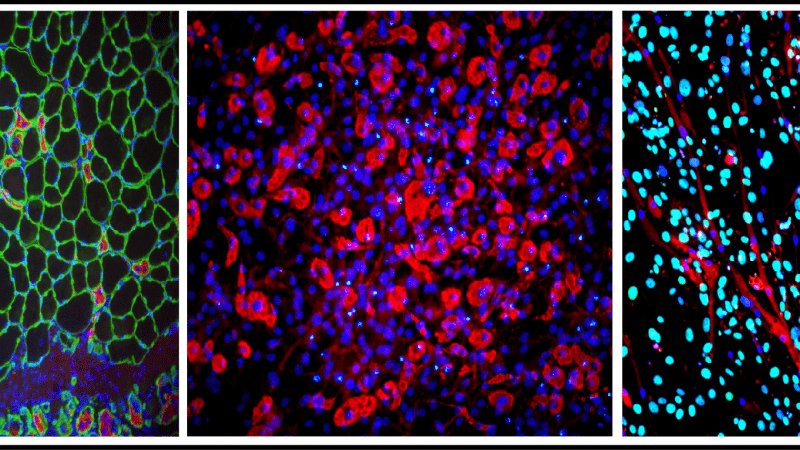 Nuovo meccanismo molecolare contro la degenerazione muscolare